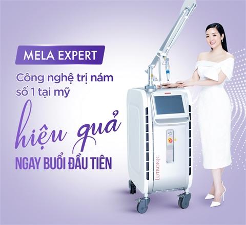 Mela Expert – Sạch 90% nám - Da sáng căng mịn
