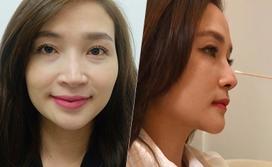 Review khách hàng về thẩm mỹ viện sửa mũi đẹp ở TpHCM - Sài Gòn