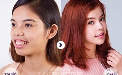 Đổi đời nhờ Phẫu thuật thuật thẩm mỹ thay đổi hoàn toàn gương mặt