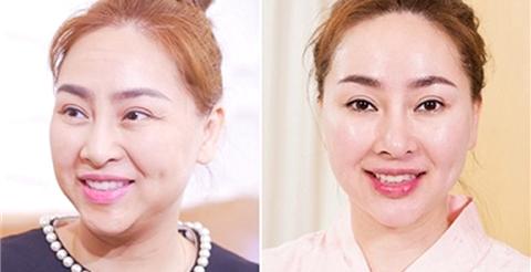 Giới thượng lưu sốt với công nghệ trẻ hóa da mới: 45 phút xóa sạch nếp nhăn