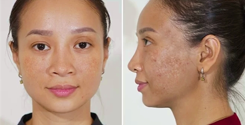 Mela Extra - Cứu tinh hơn 100 ca hỏng da vì trị nám không đúng cách